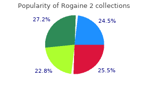 60  ml rogaine 2 fast delivery